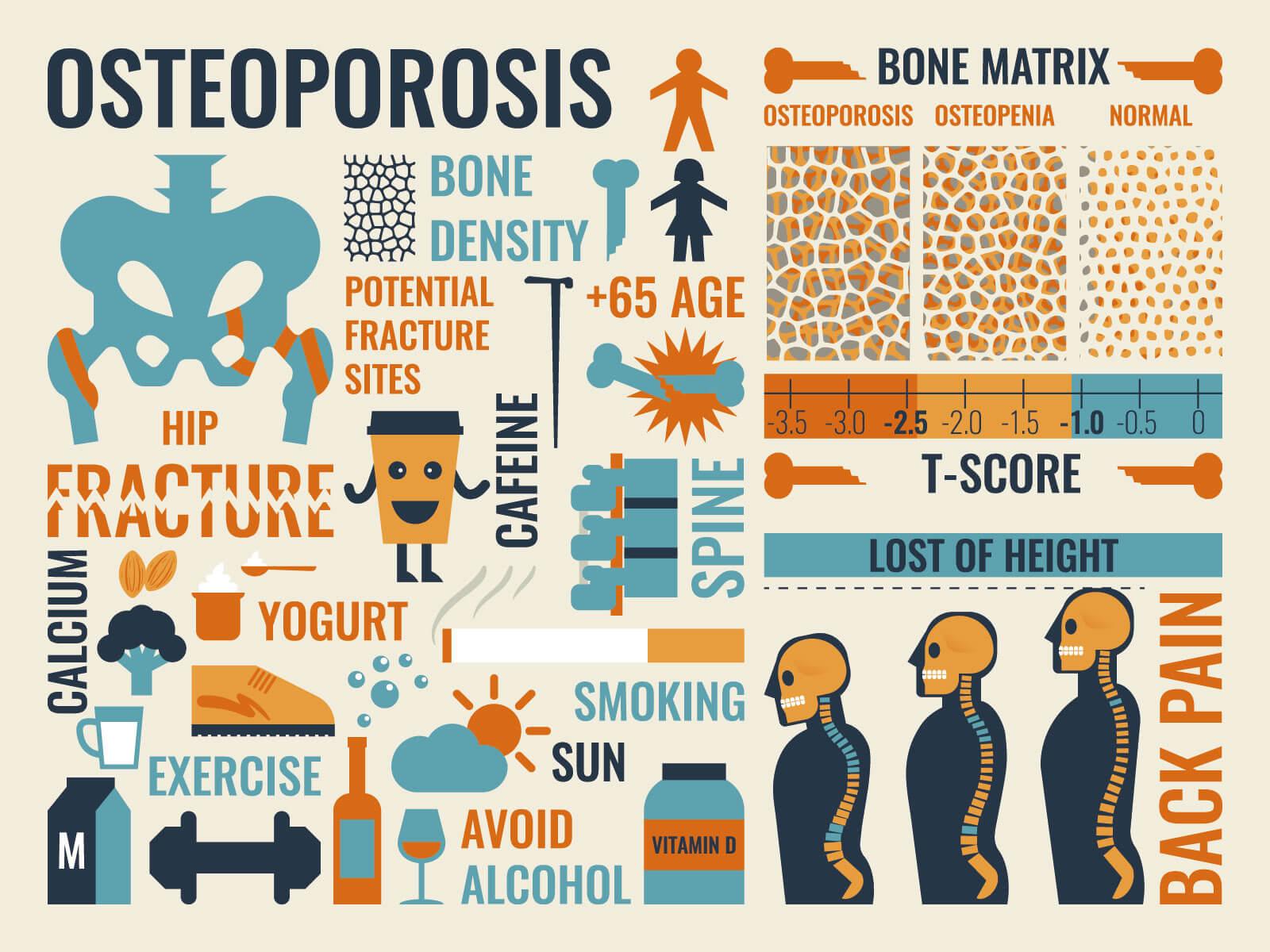 Osteoporosi Infografica