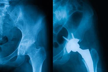 Artrosi anca curata chirurgicamente