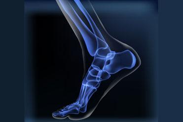 Frattura di caviglia