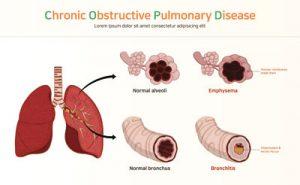 Ostruzioni polmonari